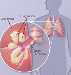Ung thư phổi - một nguyên nhân gây ho ra máu.