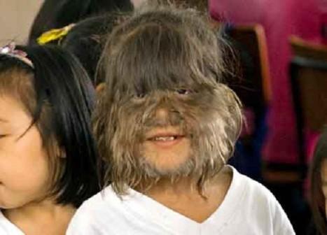 Bé Supatra Sasuphan được xác định là mắc hội chứng người sói và là người rậm lông nhất thế giới.