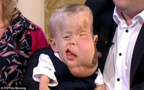 Cậu bé Aidan Jackoviak Smith không may mắc chứng bệnh lạ.