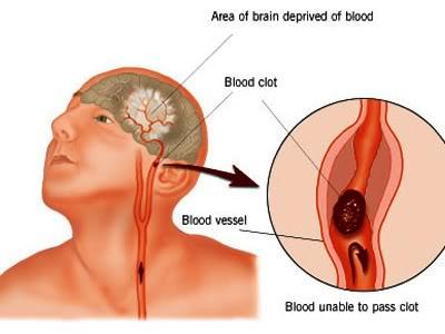 Tai biến mạch máu não